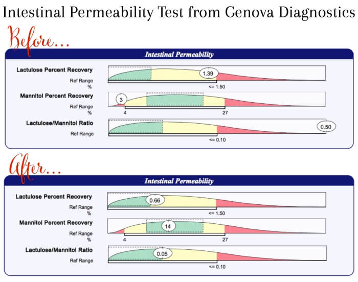Intestinal Permeability